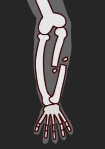 骨折した腕のレントゲンのイラスト